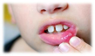 Как выражается стоматит у ребенка и чем лечить