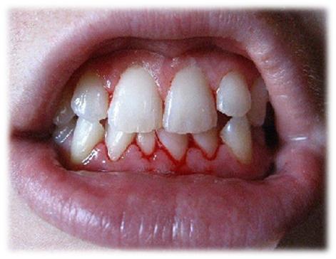 У ребенка идет гной из зуба